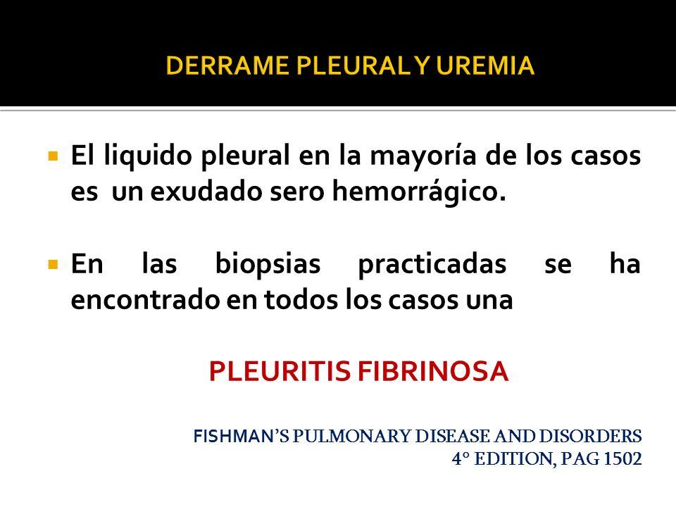 El liquido pleural en la mayoría de los casos es un exudado sero hemorrágico. En las biopsias practicadas se ha encontrado en todos los casos una PLEU
