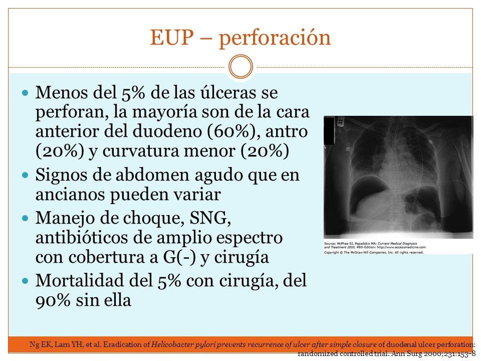 EUP – perforación Menos del 5% de las úlceras se perforan, la mayoría son de la cara anterior del duodeno (60%), antro (20%) y curvatura menor (20%) S