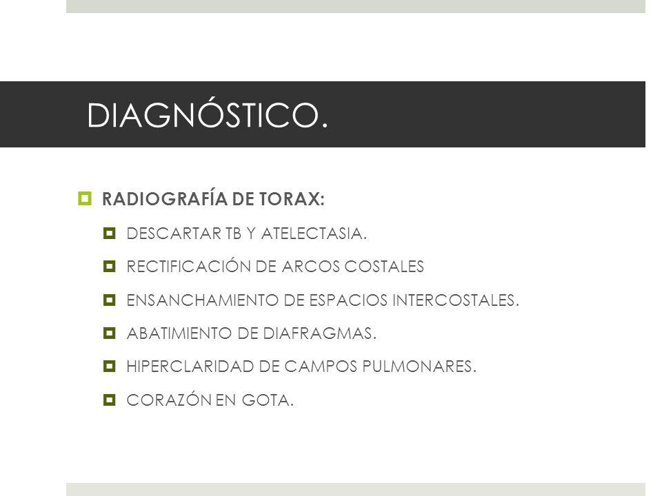 DIAGNÓSTICO. RADIOGRAFÍA DE TORAX: DESCARTAR TB Y ATELECTASIA. RECTIFICACIÓN DE ARCOS COSTALES ENSANCHAMIENTO DE ESPACIOS INTERCOSTALES. ABATIMIENTO D