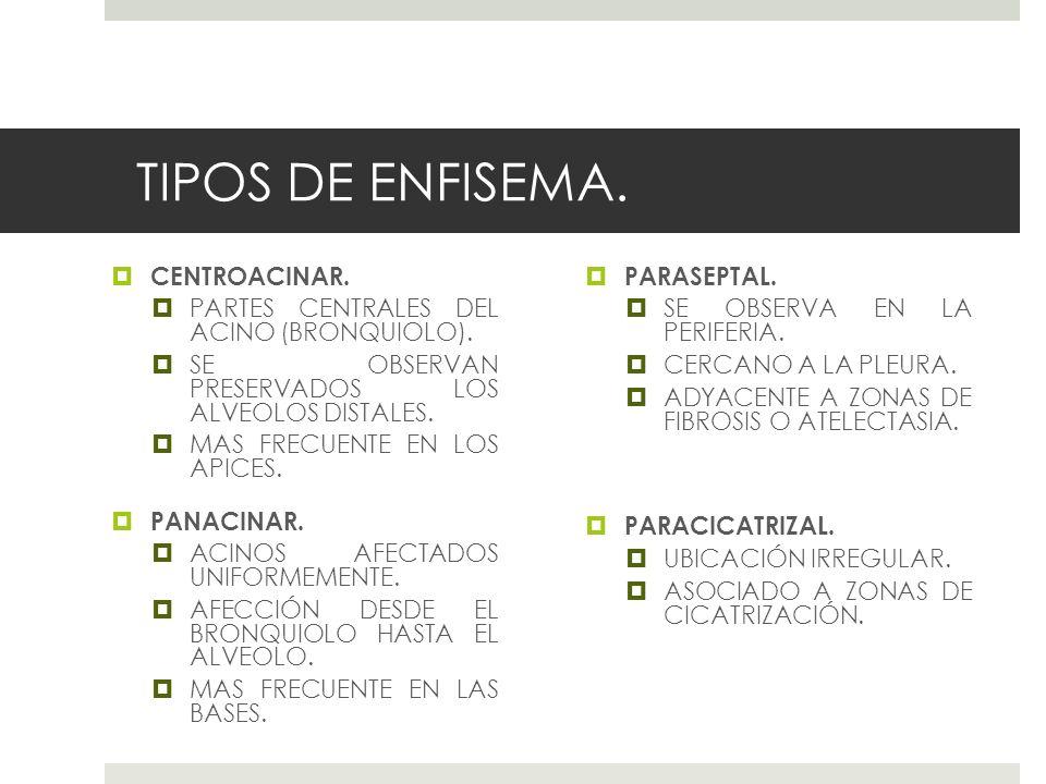 TIPOS DE ENFISEMA. CENTROACINAR. PARTES CENTRALES DEL ACINO (BRONQUIOLO). SE OBSERVAN PRESERVADOS LOS ALVEOLOS DISTALES. MAS FRECUENTE EN LOS APICES.