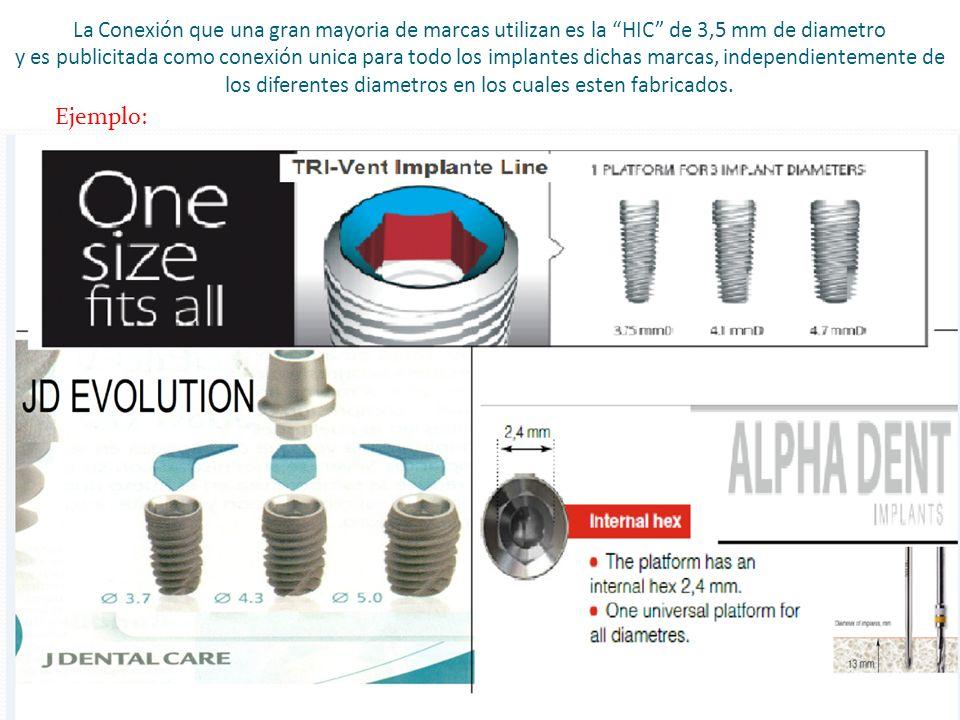 La Conexión que una gran mayoria de marcas utilizan es la HIC de 3,5 mm de diametro y es publicitada como conexión unica para todo los implantes dicha