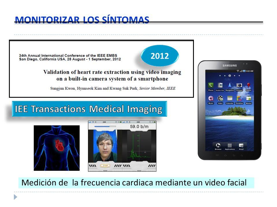 MONITORIZAR LOS SÍNTOMAS 2012 Medición de la frecuencia cardiaca mediante un video facial