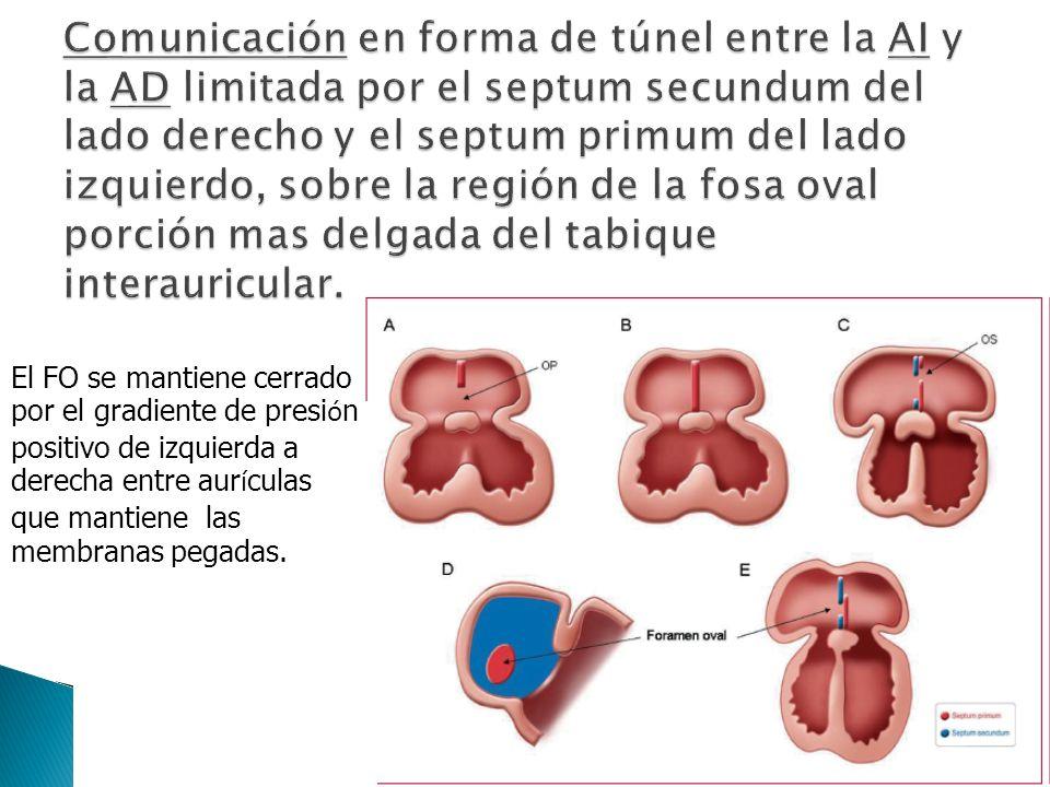 Variable anatómica y no patológica en ausencia de embolia paradojal u otras condiciones.