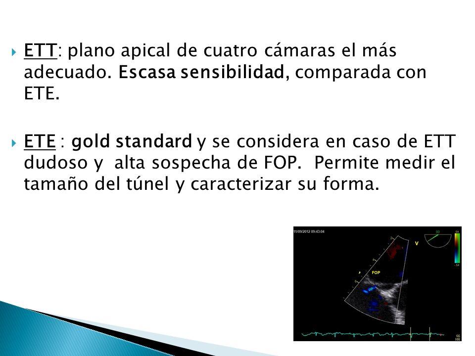 Modalidades Anatómicas Retracción del SP ASIA Separación del SP -SS Tuneliforme