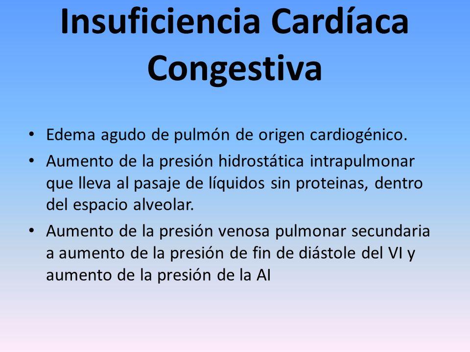 Insuficiencia Cardíaca Congestiva Edema agudo de pulmón de origen cardiogénico. Aumento de la presión hidrostática intrapulmonar que lleva al pasaje d