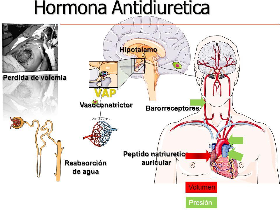 Flujo renal disminuido Celulas Yuxtaglomerulares Renina Angiotensina I Angiotensina II Vasoconstricción Reducción de la excreción de Sal y agua Secreción de Aldosterona