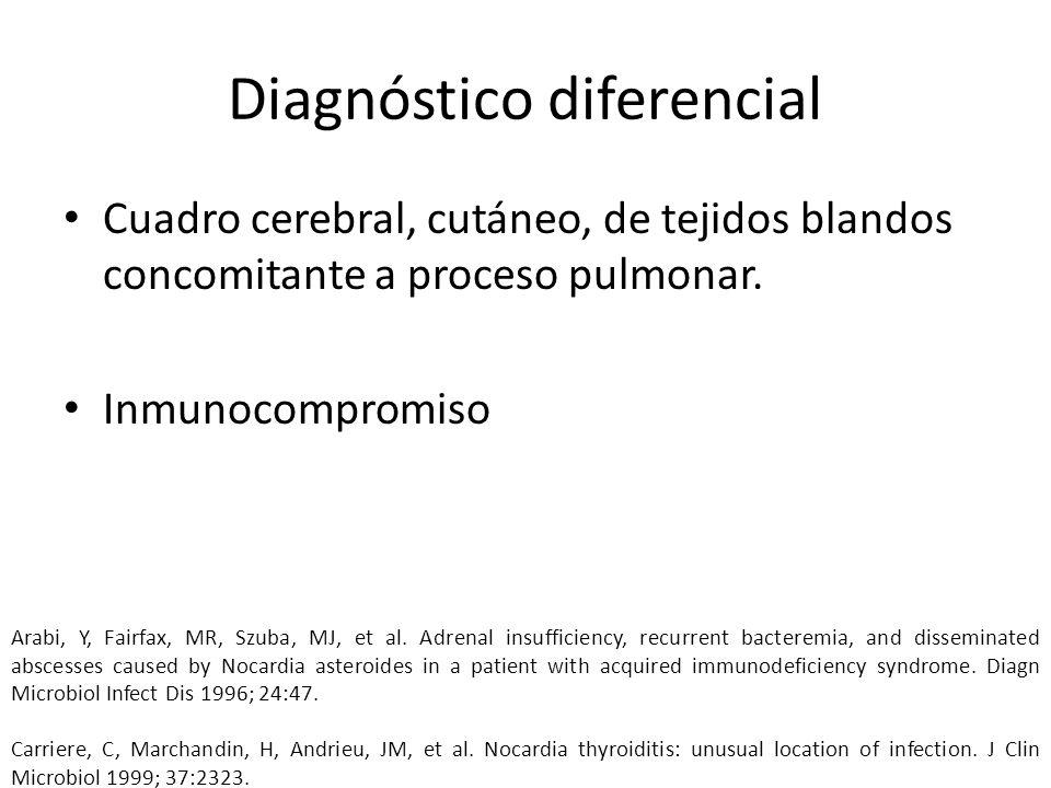Diagnóstico diferencial Cuadro cerebral, cutáneo, de tejidos blandos concomitante a proceso pulmonar. Inmunocompromiso Arabi, Y, Fairfax, MR, Szuba, M