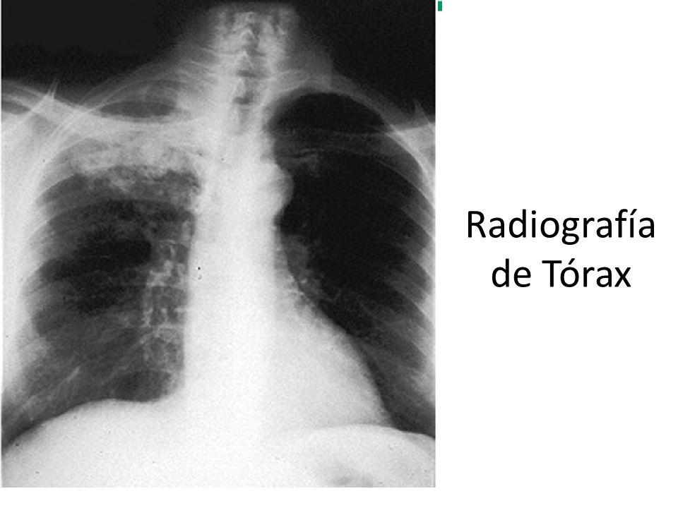 Diagnóstico diferencial Cuadro cerebral, cutáneo, de tejidos blandos concomitante a proceso pulmonar.