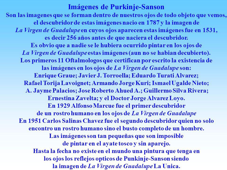 INCÓGNITAS SOBRE LA IMAGEN DE LA VIRGEN DE GUADALUPE. Es prodigiosa la conservacion durante 475 años (2006) de esta maravillosa imagen. La duracion no