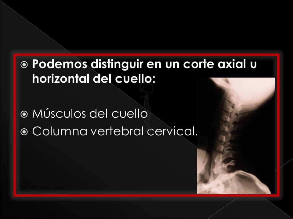 Podemos distinguir en un corte axial u horizontal del cuello: Músculos del cuello Columna vertebral cervical.