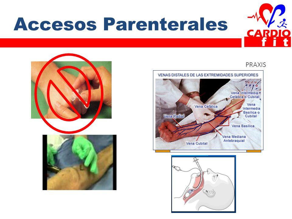 Accesos Parenterales PRAXIS