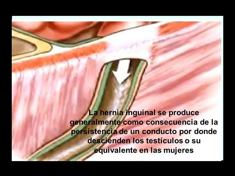 La hernia inguinal se produce generalmente como consecuencia de la persistencia de un conducto por donde descienden los testículos o su equivalente en