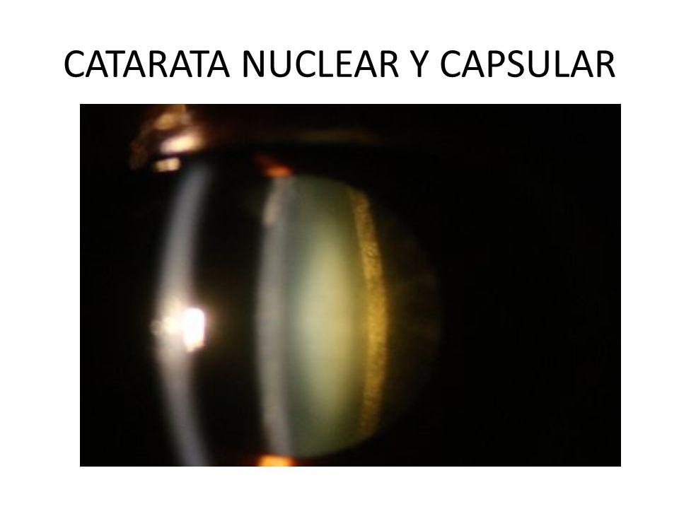 CATARATA NUCLEAR Y CAPSULAR
