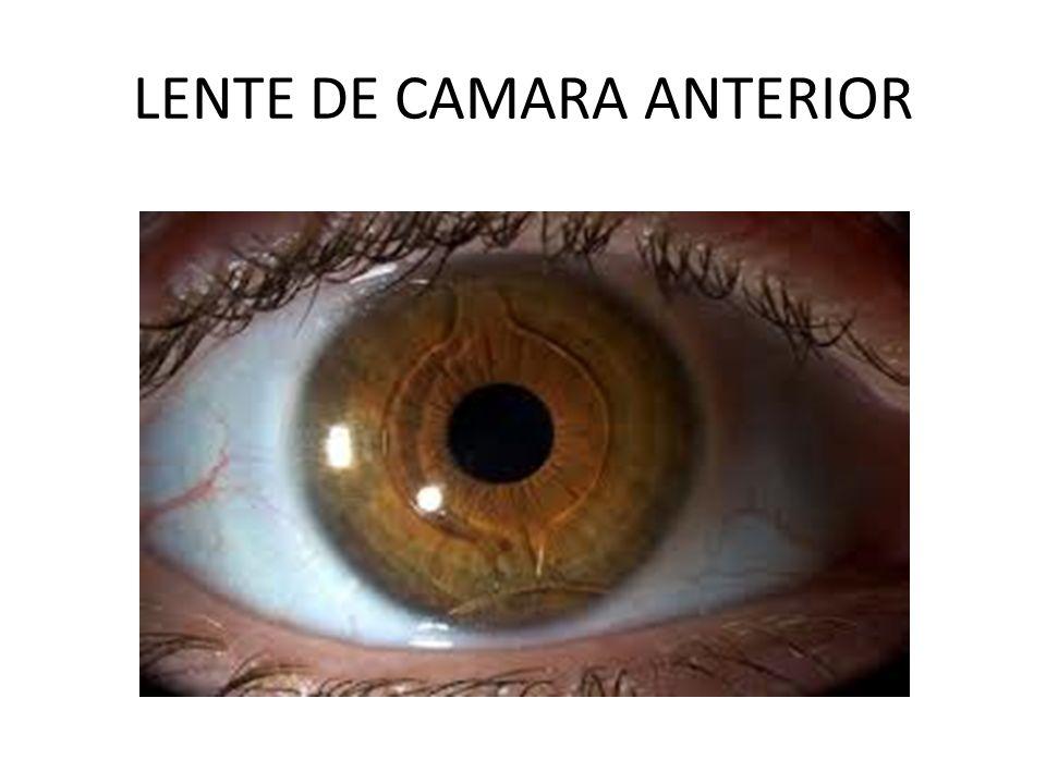 LENTE DE CAMARA ANTERIOR