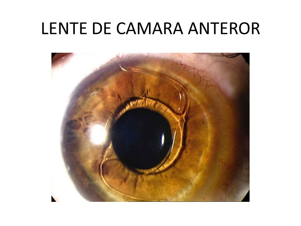 LENTE DE CAMARA ANTEROR