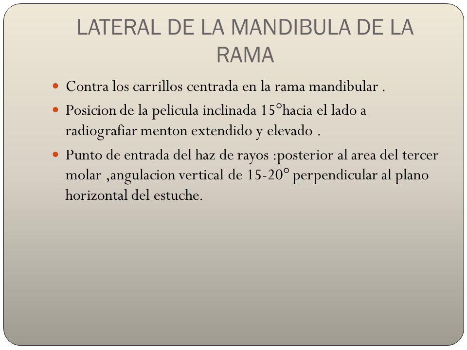LATERAL DE LA MANDIBULA DE LA RAMA Contra los carrillos centrada en la rama mandibular.