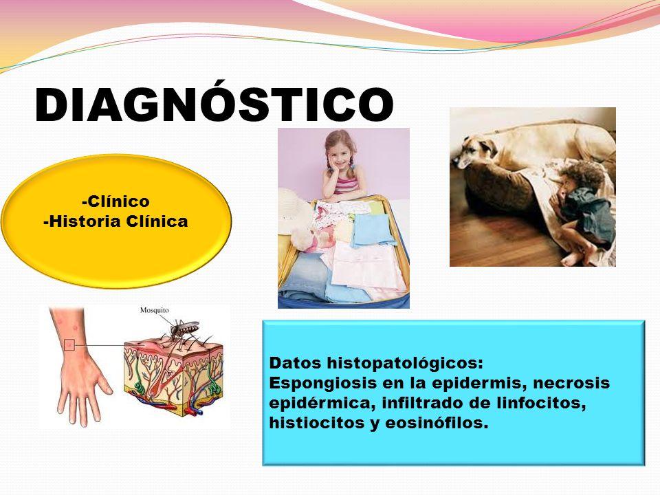 DIAGNÓSTICO -Clínico -Historia Clínica Datos histopatológicos: Espongiosis en la epidermis, necrosis epidérmica, infiltrado de linfocitos, histiocitos