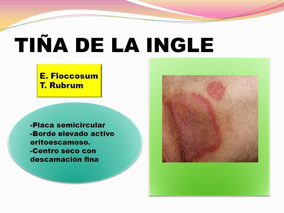 TIÑA DE LA INGLE E. Floccosum T. Rubrum -Placa semicircular -Borde elevado activo eritoescamoso. -Centro seco con descamación fina -Placa semicircular