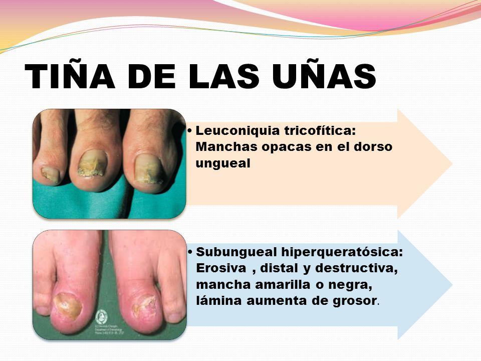 TIÑA DE LAS UÑAS Leuconiquia tricofítica: Manchas opacas en el dorso ungueal Subungueal hiperqueratósica: Erosiva, distal y destructiva, mancha amaril