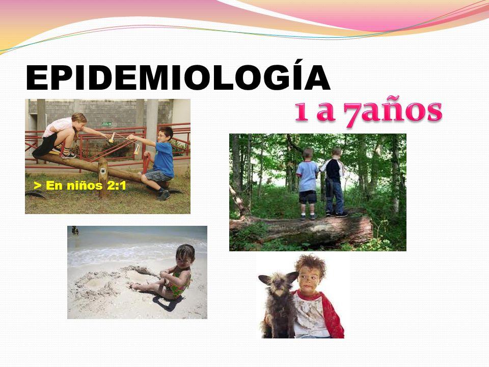 EPIDEMIOLOGÍA > En niños 2:1