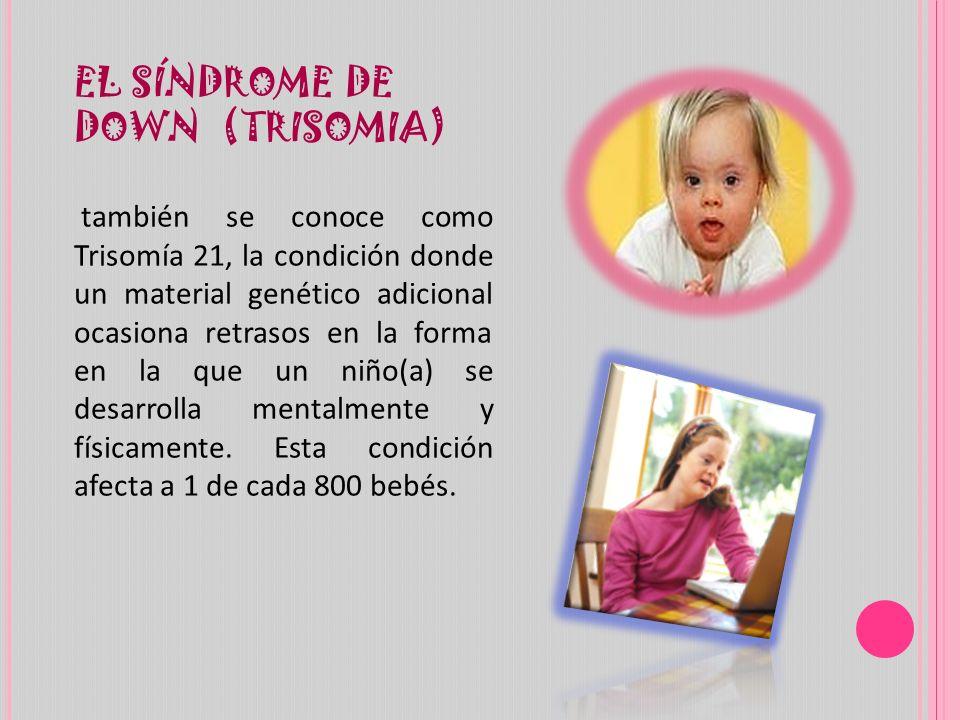 EL SÍNDROME DE DOWN (TRISOMIA) también se conoce como Trisomía 21, la condición donde un material genético adicional ocasiona retrasos en la forma en