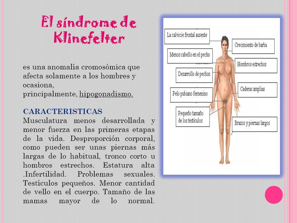 El síndrome de Klinefelter es una anomalía cromosómica que afecta solamente a los hombres y ocasiona, principalmente, hipogonadismo. CARACTERISTICAS M