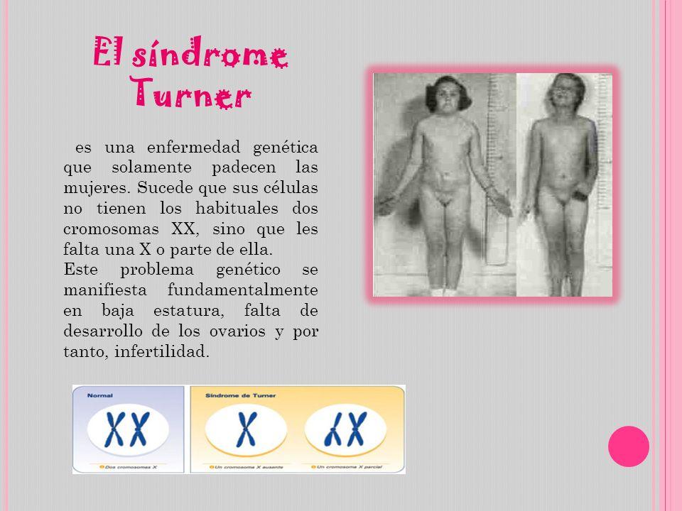 El síndrome Turner es una enfermedad genética que solamente padecen las mujeres. Sucede que sus células no tienen los habituales dos cromosomas XX, si