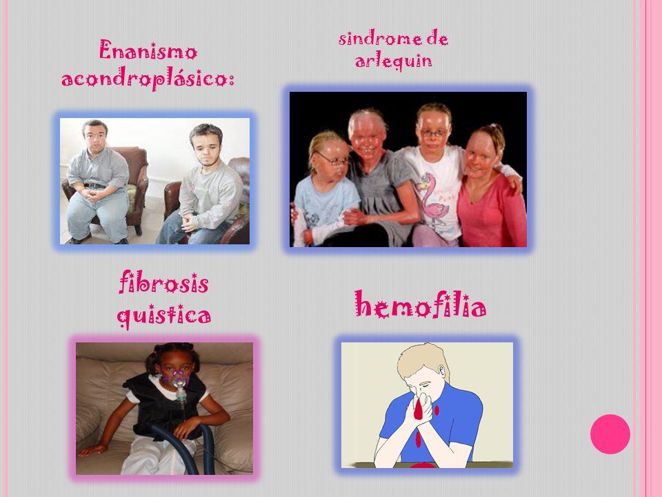 Enanismo acondroplásico: fibrosis quistica sindrome de arlequin hemofilia