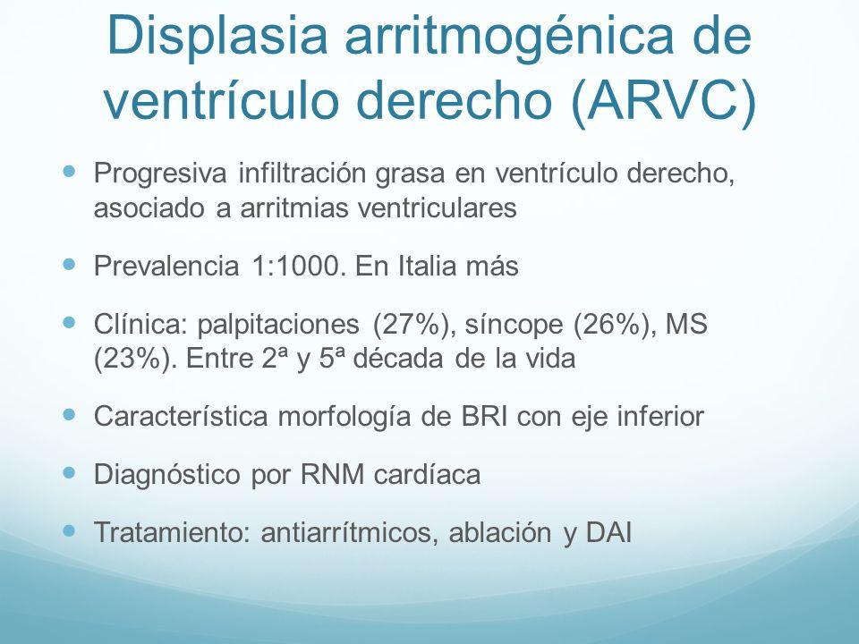 Displasia arritmogénica de ventrículo derecho (ARVC) Progresiva infiltración grasa en ventrículo derecho, asociado a arritmias ventriculares Prevalenc