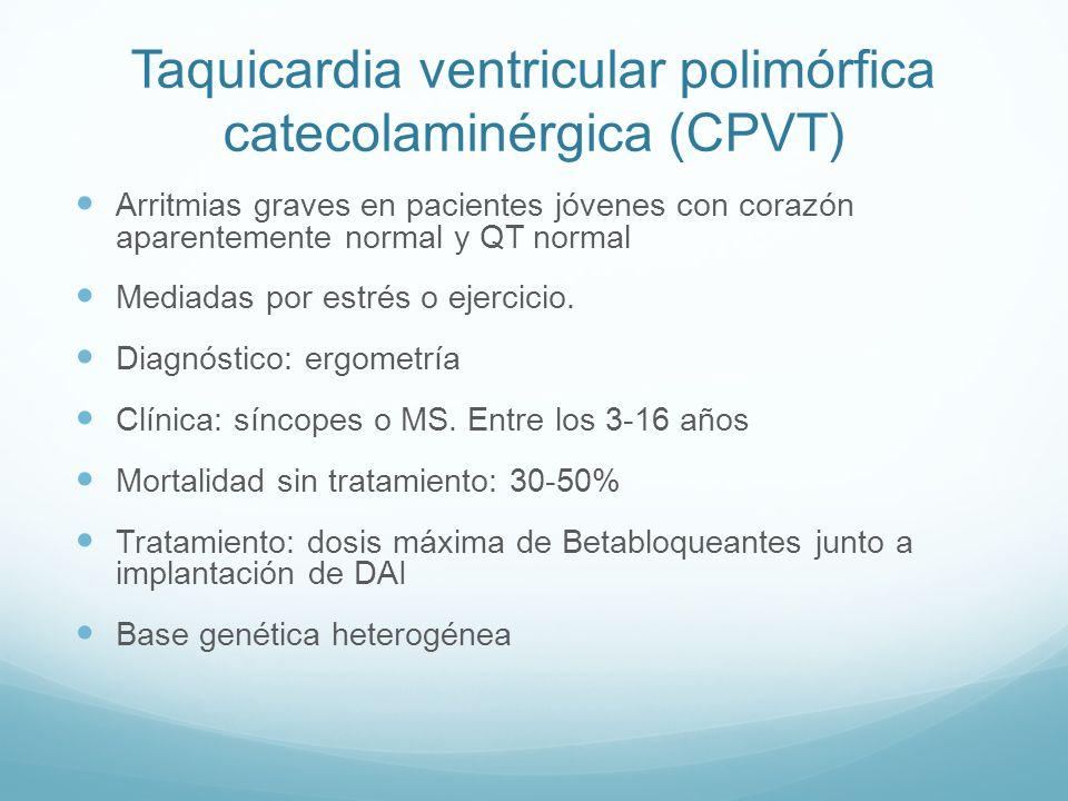 Taquicardia ventricular polimórfica catecolaminérgica (CPVT) Arritmias graves en pacientes jóvenes con corazón aparentemente normal y QT normal Mediad