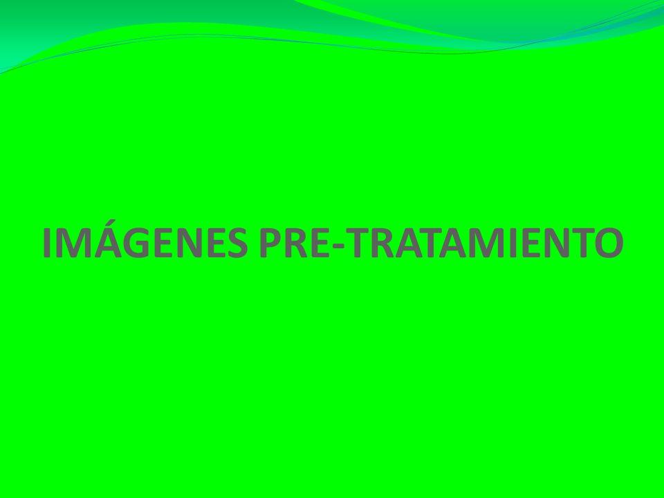 IMÁGENES PRE-TRATAMIENTO