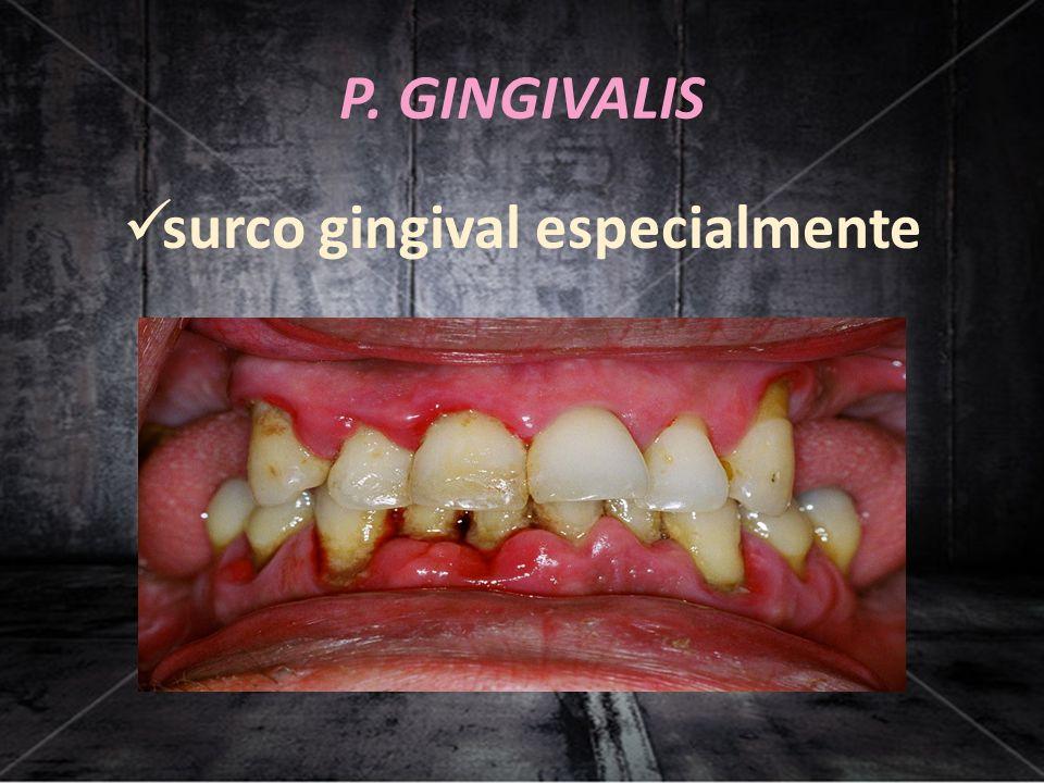 P. GINGIVALIS surco gingival especialmente