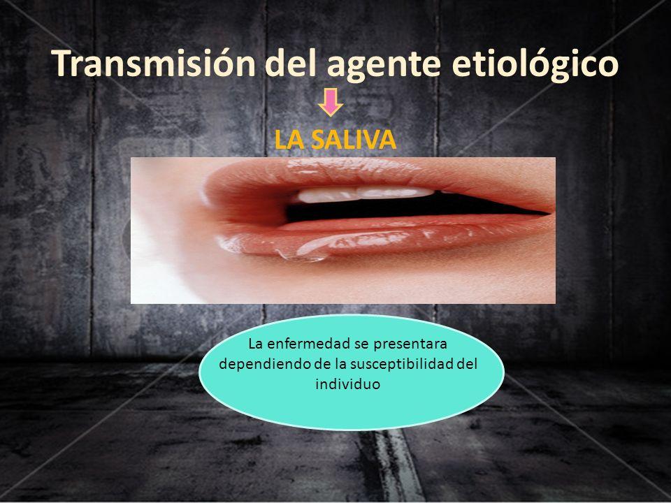Transmisión del agente etiológico LA SALIVA La enfermedad se presentara dependiendo de la susceptibilidad del individuo