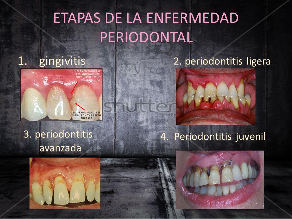 ETAPAS DE LA ENFERMEDAD PERIODONTAL 1. gingivitis 2. periodontitis ligera 3. periodontitis avanzada 4. Periodontitis juvenil