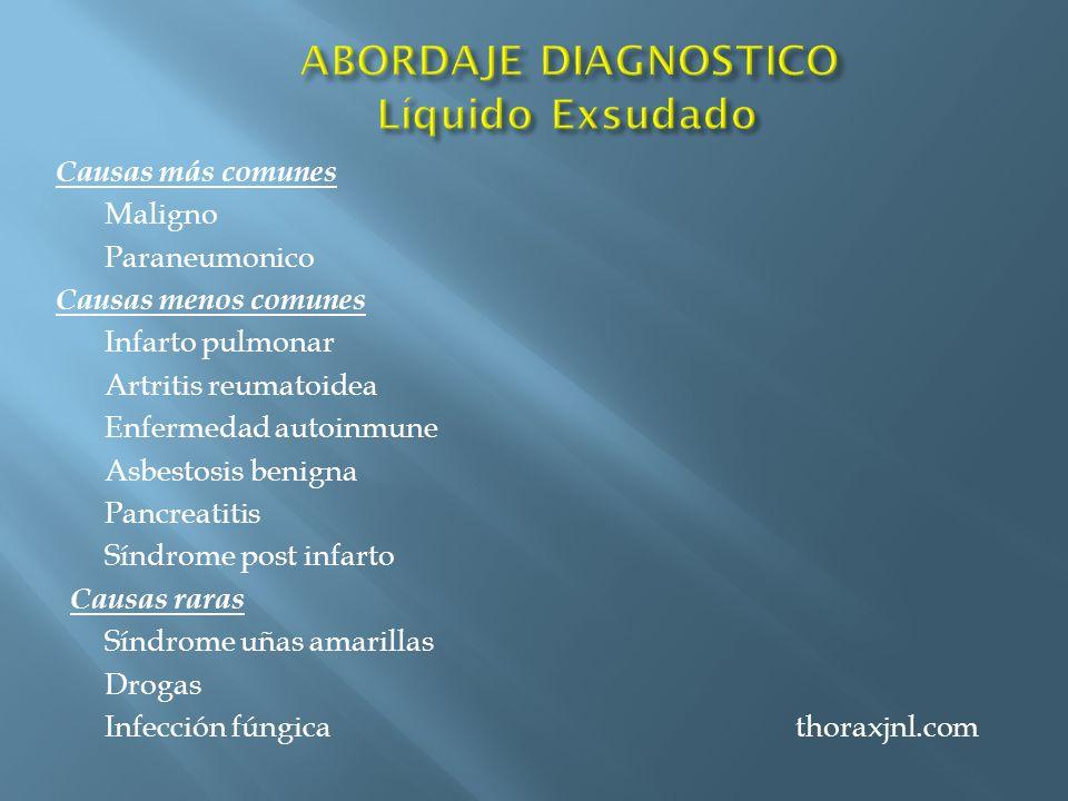 Causas más comunes Maligno Paraneumonico Causas menos comunes Infarto pulmonar Artritis reumatoidea Enfermedad autoinmune Asbestosis benigna Pancreati