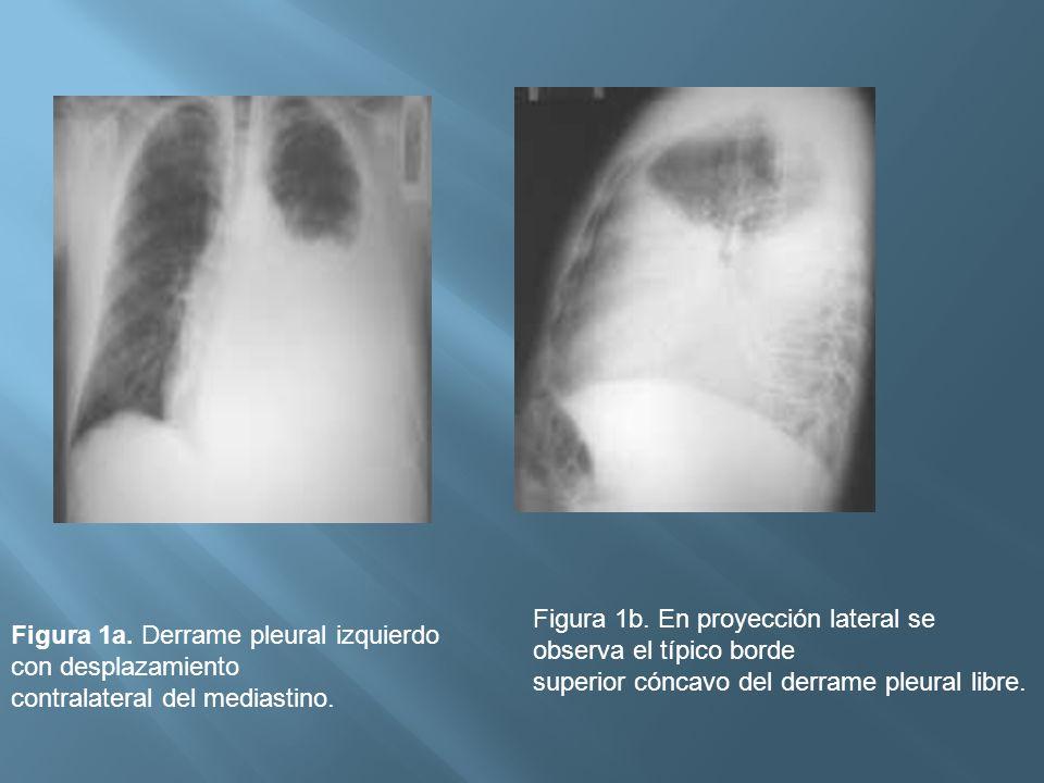 Figura 1a. Derrame pleural izquierdo con desplazamiento contralateral del mediastino. Figura 1b. En proyección lateral se observa el típico borde supe