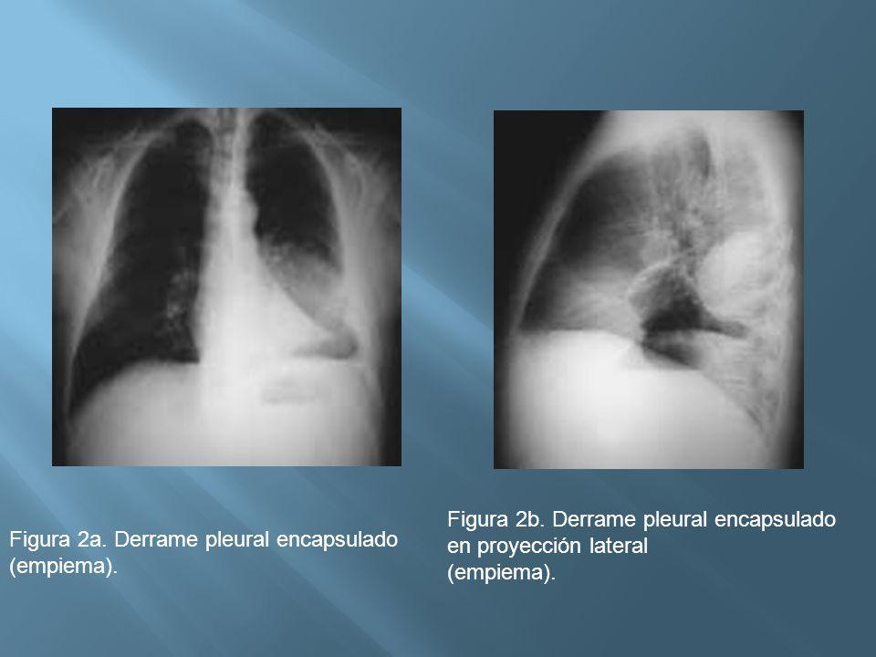 Figura 2a. Derrame pleural encapsulado (empiema). Figura 2b. Derrame pleural encapsulado en proyección lateral (empiema).