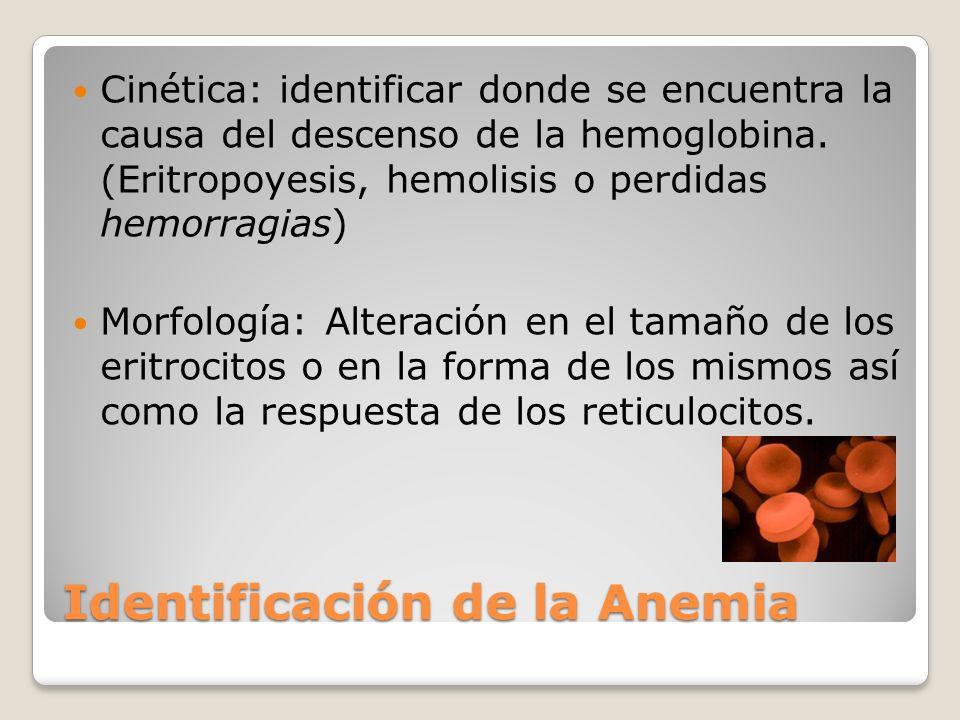 Identificación de la Anemia Cinética: identificar donde se encuentra la causa del descenso de la hemoglobina. (Eritropoyesis, hemolisis o perdidas hem