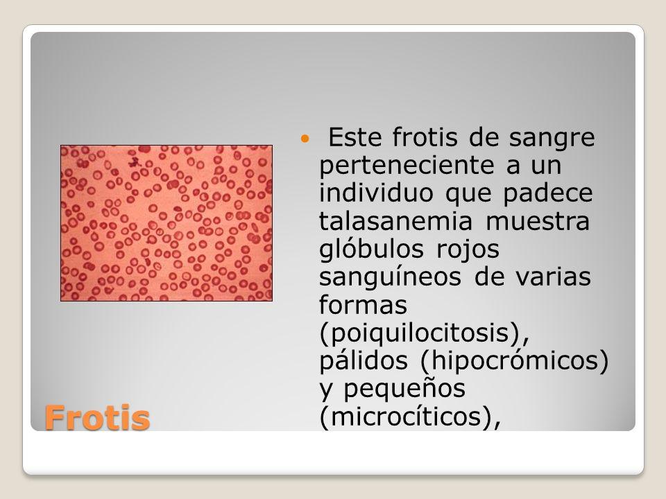 Frotis Este frotis de sangre perteneciente a un individuo que padece talasanemia muestra glóbulos rojos sanguíneos de varias formas (poiquilocitosis),
