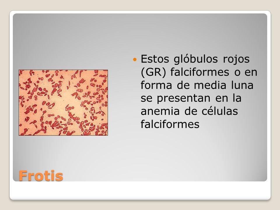 Frotis Estos glóbulos rojos (GR) falciformes o en forma de media luna se presentan en la anemia de células falciformes