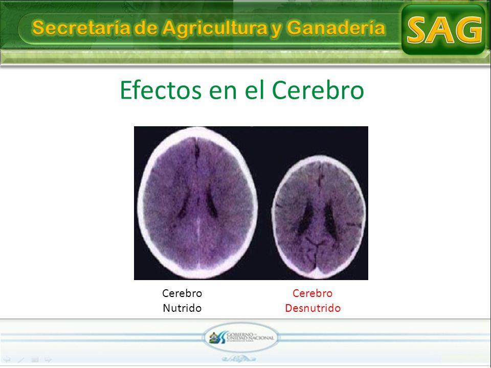Efectos en el Cerebro Cerebro Nutrido Cerebro Desnutrido