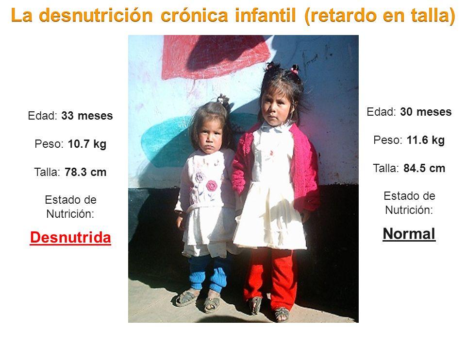 Edad: 33 meses Peso: 10.7 kg Talla: 78.3 cm Estado de Nutrición: Desnutrida Edad: 30 meses Peso: 11.6 kg Talla: 84.5 cm Estado de Nutrición: Normal
