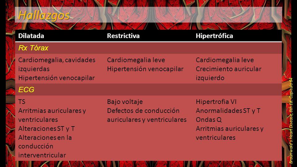 Hallazgos Braunwalds Heart Disease, 8th Ed. Capìtulo 64 DilatadaRestrictivaHipertrófica Rx Tórax Cardiomegalia, cavidades izquierdas Hipertensión veno