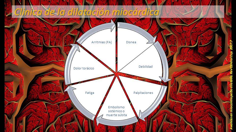 Clinica de la dilatación miocárdica Avances en miocardiopatia dilatada. Rev Cardiol Esp. 2007:7 Disnea Debilidad Palpitaciones Embolismo sistémico o m