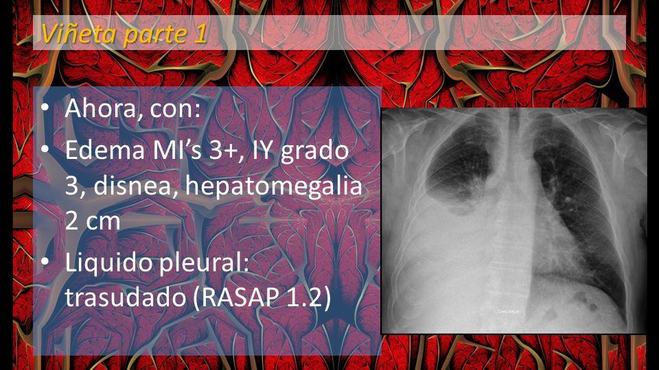 Viñeta parte 1 Ahora, con: Edema MIs 3+, IY grado 3, disnea, hepatomegalia 2 cm Liquido pleural: trasudado (RASAP 1.2)