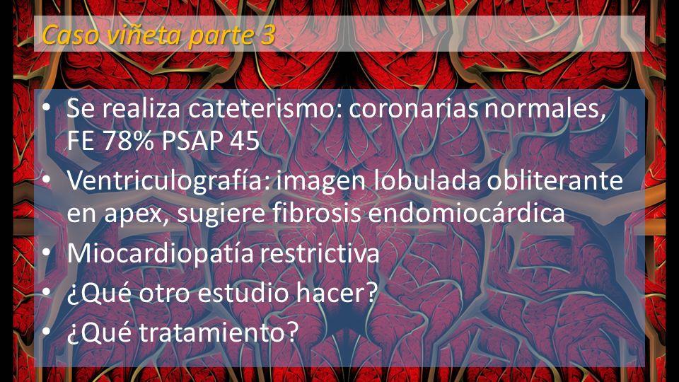 Caso viñeta parte 3 Se realiza cateterismo: coronarias normales, FE 78% PSAP 45 Ventriculografía: imagen lobulada obliterante en apex, sugiere fibrosi