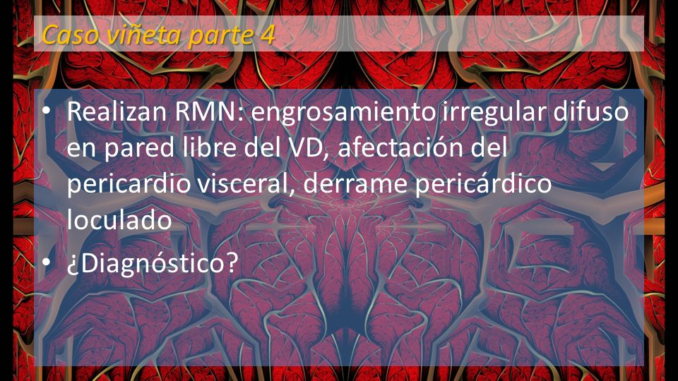 Caso viñeta parte 4 Realizan RMN: engrosamiento irregular difuso en pared libre del VD, afectación del pericardio visceral, derrame pericárdico locula