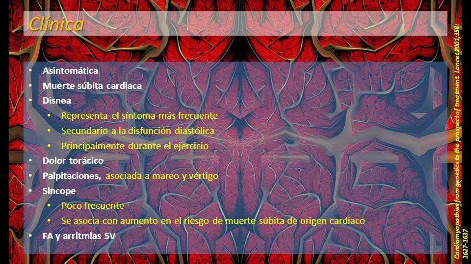 Clínica Asintomática Muerte súbita cardiaca Disnea Representa el síntoma más frecuente Secundario a la disfunción diastólica Principalmente durante el