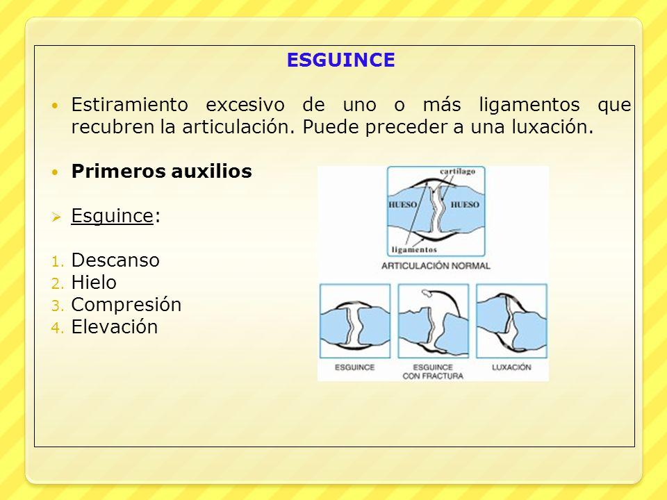 ESGUINCE Estiramiento excesivo de uno o más ligamentos que recubren la articulación. Puede preceder a una luxación. Primeros auxilios Esguince: 1. Des