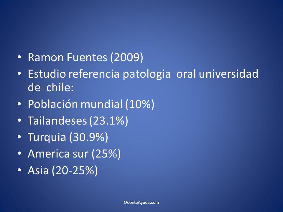 Ramon Fuentes (2009) Estudio referencia patologia oral universidad de chile: Población mundial (10%) Tailandeses (23.1%) Turquia (30.9%) America sur (